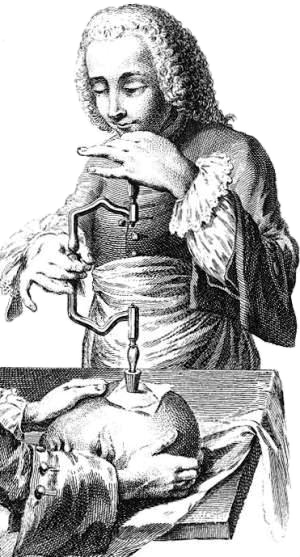 18th-century French illustration of trepanation.